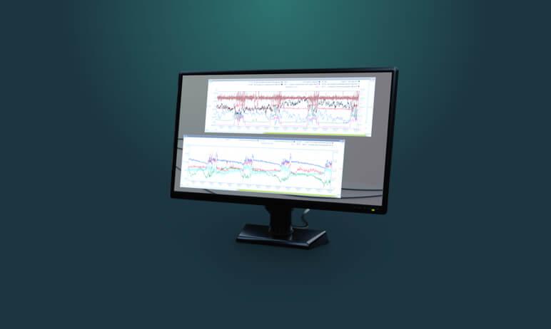Operation analysis illustration